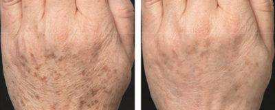 Traitement rajeunissant Touch Skin21 avant/après